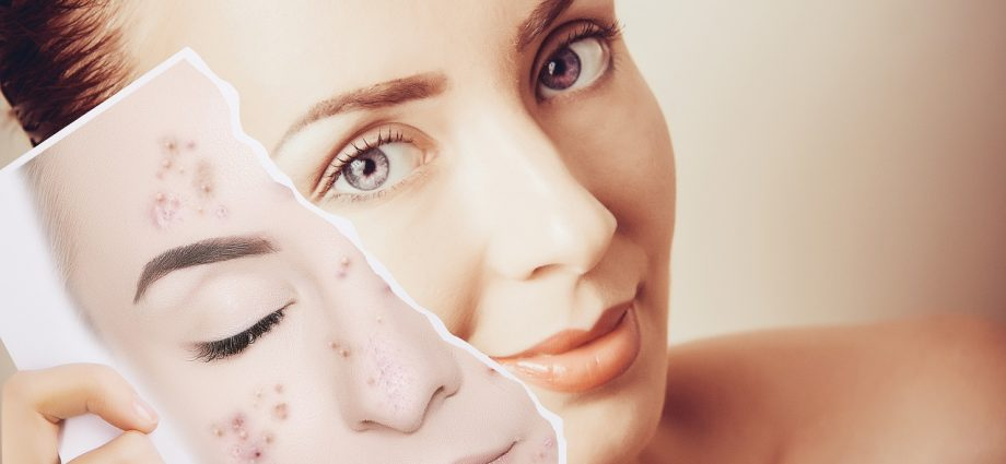 Start Utilizing These Ideas To Get Rid Of Your Zits
